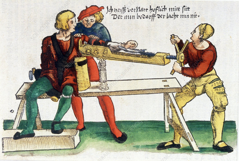 Extension of a broken arm, 16th century