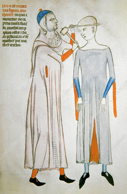 Trepanation, 14th century artwork