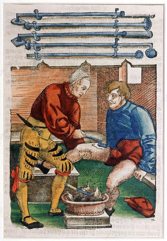 Wound Cauterisation 16th Century Stock Image N700 0095