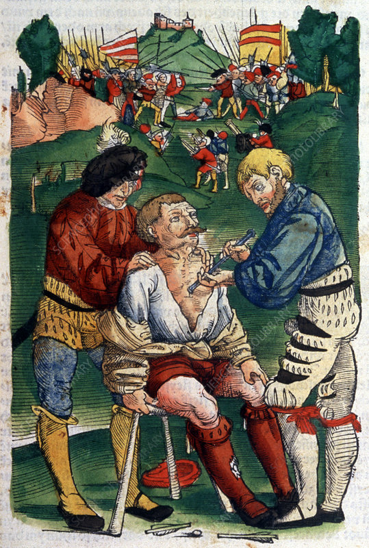 Battlefield surgery, 1540