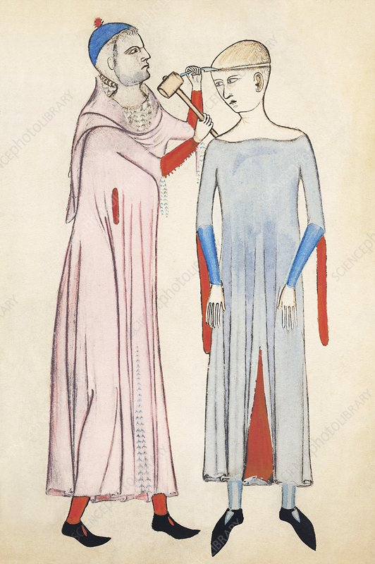 Trepanation, 14th century artwork