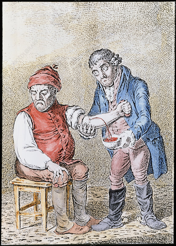 Artwork of a doctor bleeding a patient