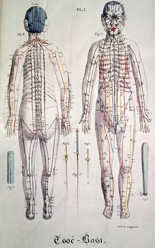 Acupuncture diagrams