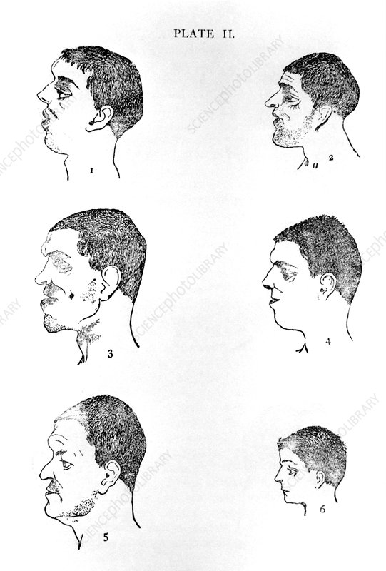 Phrenological study of criminals