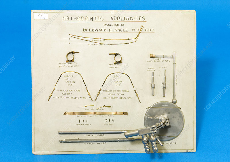 Historical orthodontic equipment