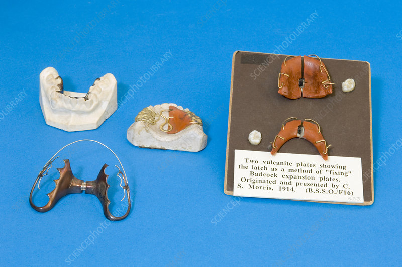 Historical orthodontic plates