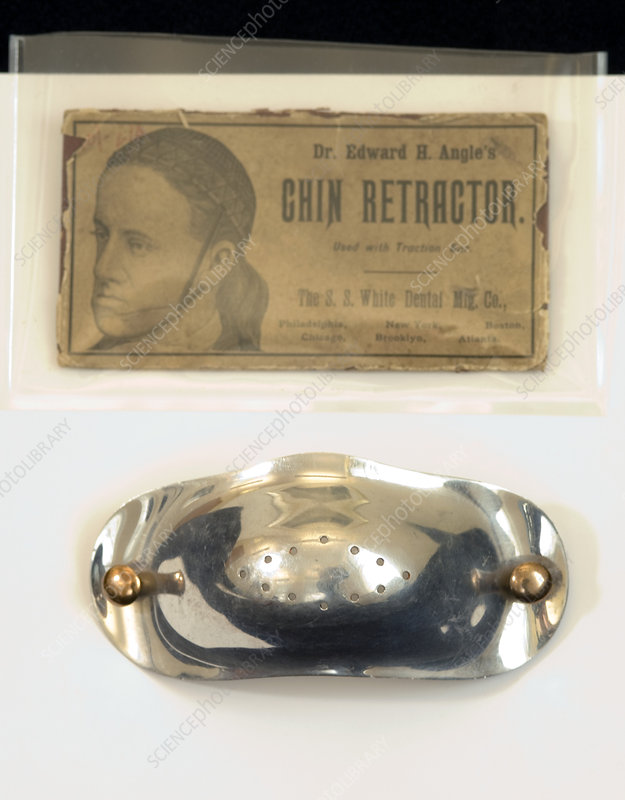 Historical orthodontic chin retractor