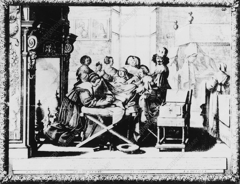 Historical engraving of a woman giving birth