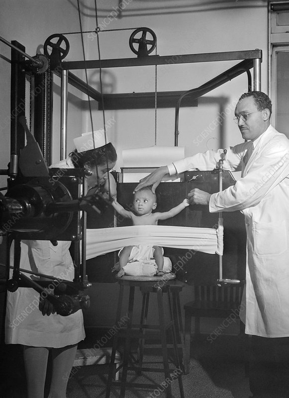Baby being X-rayed, 1942