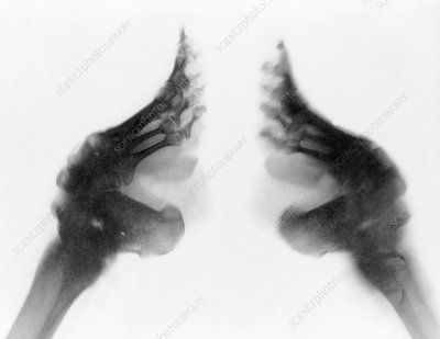 Bound feet of Chinese girl, X-ray