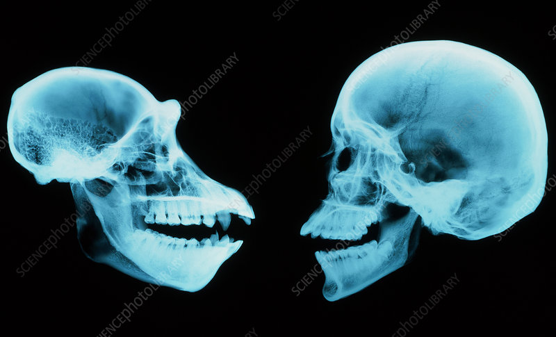 Coloured X-ray of human and chimpanzee sk