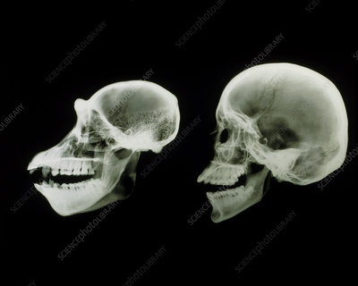 X-ray of human and chimpanzee skulls
