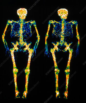 Bone densitometry scans of the skeletons of twins