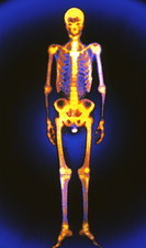 Coloured gamma scan of the human skeleton