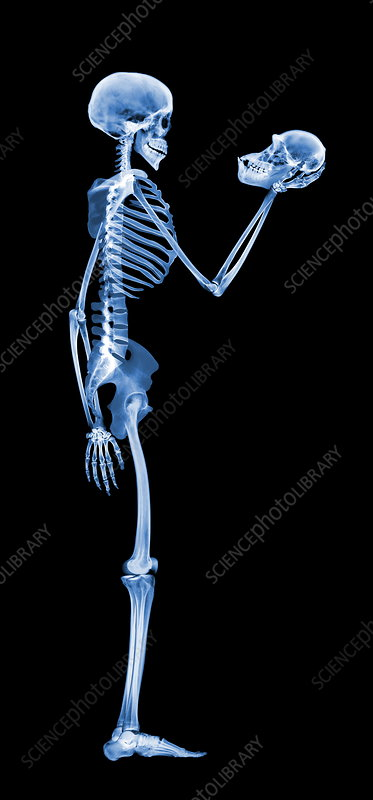 Skeleton holding a skull, X-ray