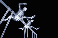 Two hurdlers hurdling, X-ray artwork