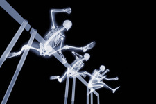 Three hurdlers hurdling, X-ray artwork