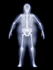 Obese man, X-ray artwork