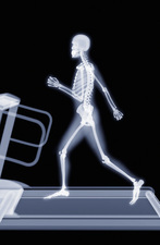 Jogging on a treadmill, X-ray artwork