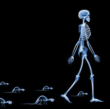 Skeletons of a human and rats, X-ray