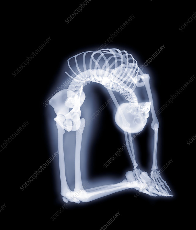 Backward bend, X-ray artwork