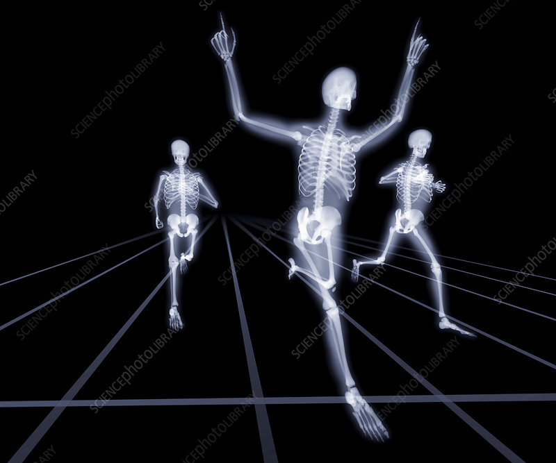 Winning the race, X-ray artwork