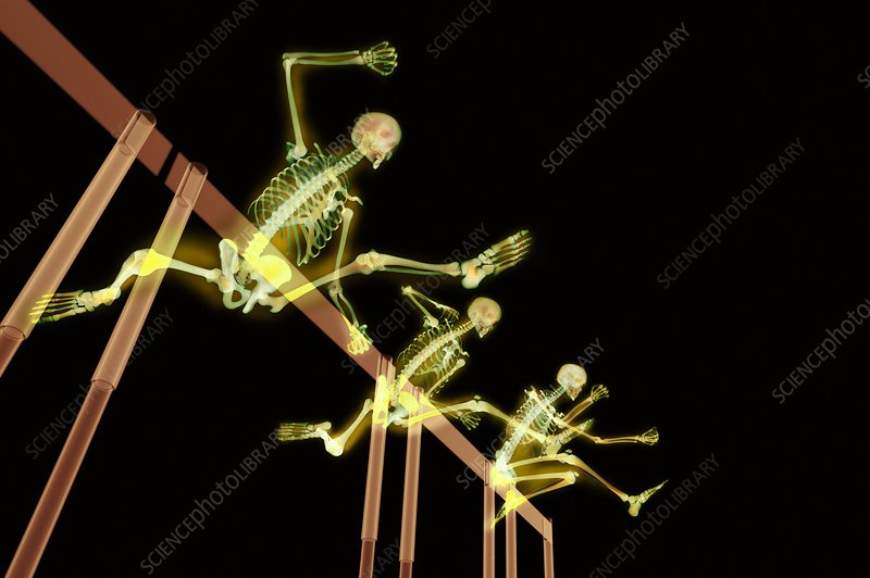 Hurdlers, X-ray artwork