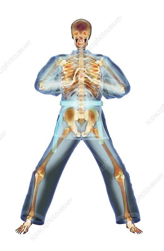 Martial arts greeting x ray artwork stock image p1000247 martial arts greeting x ray artwork m4hsunfo