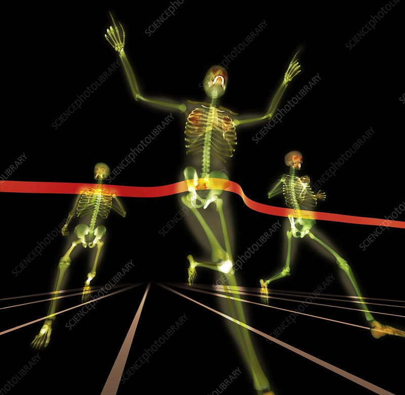 Athletes finishing a race, X-ray artwork