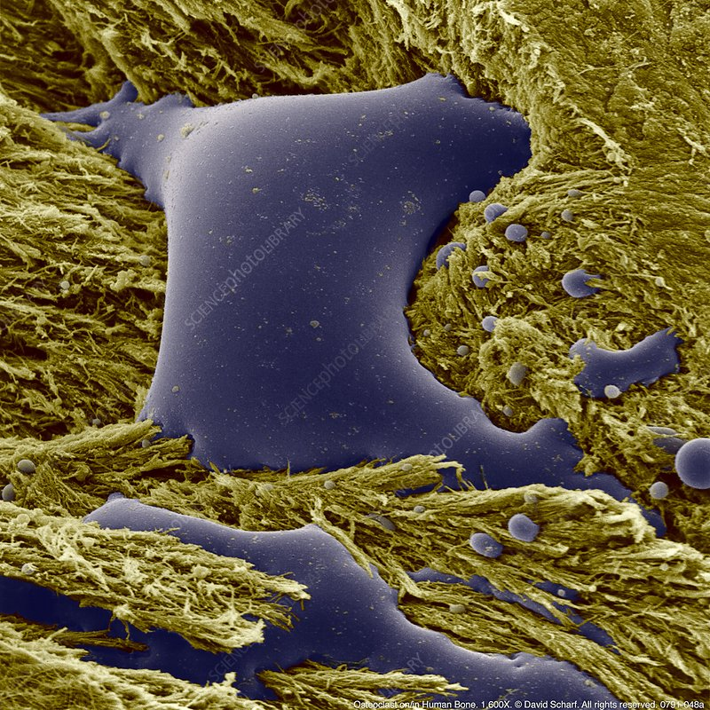 Coloured SEM of osteoclasts in human bone