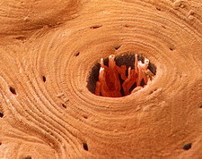 Transverse section of compact bone, SEM