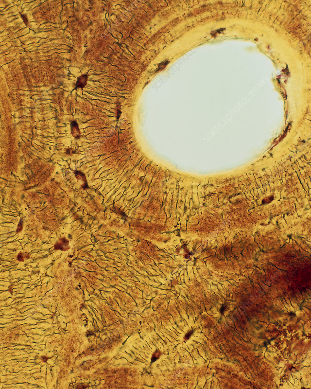 Light micrograph of compact bone cross section