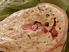 Interior of a bone, SEM