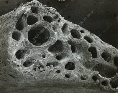 SEM of the sternum of a pink footed goose