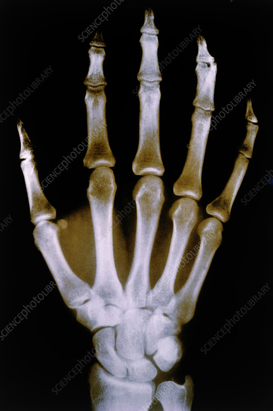 X-ray photo of normal right hand