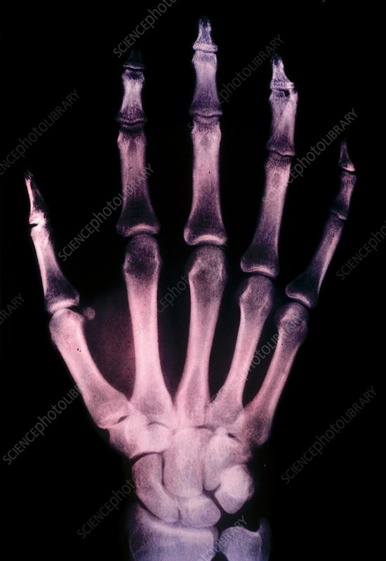 False colour x-ray of right hand. Colorvir process