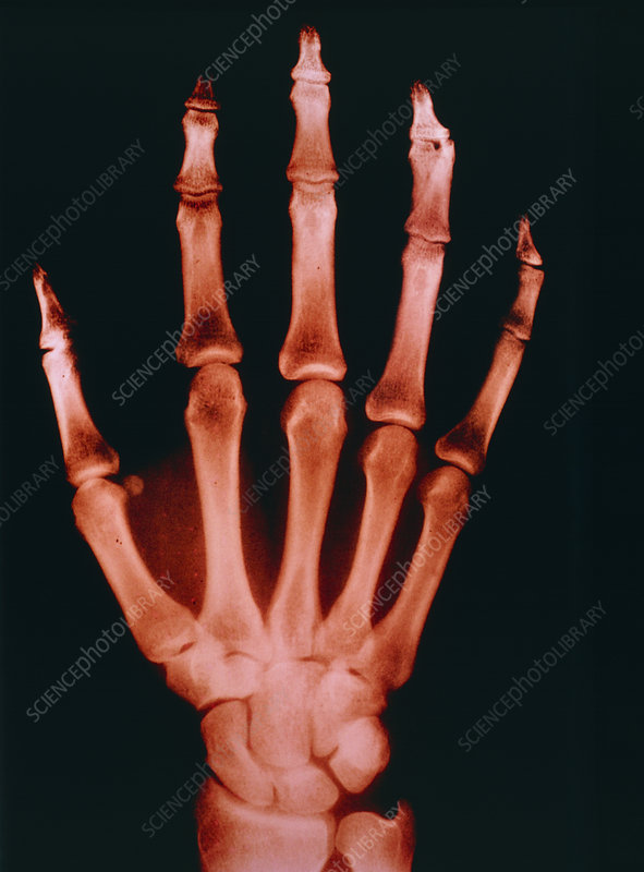 Tinted X-ray showing a normal human right hand