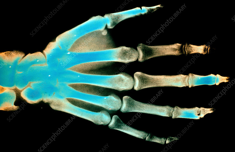 Colorvir X-ray of normal right hand