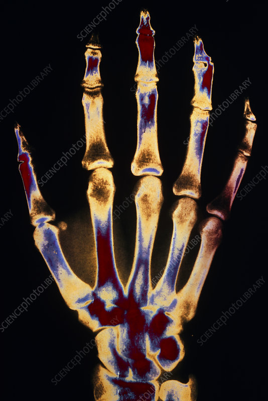 False-colour X-ray of a normal human right hand