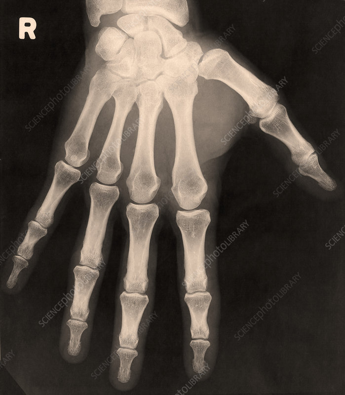 X-ray of right hand