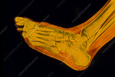 False-colour X-ray of normal human foot, side view