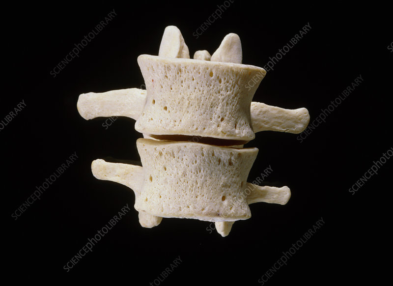 Third and fourth lumbar vertebrae