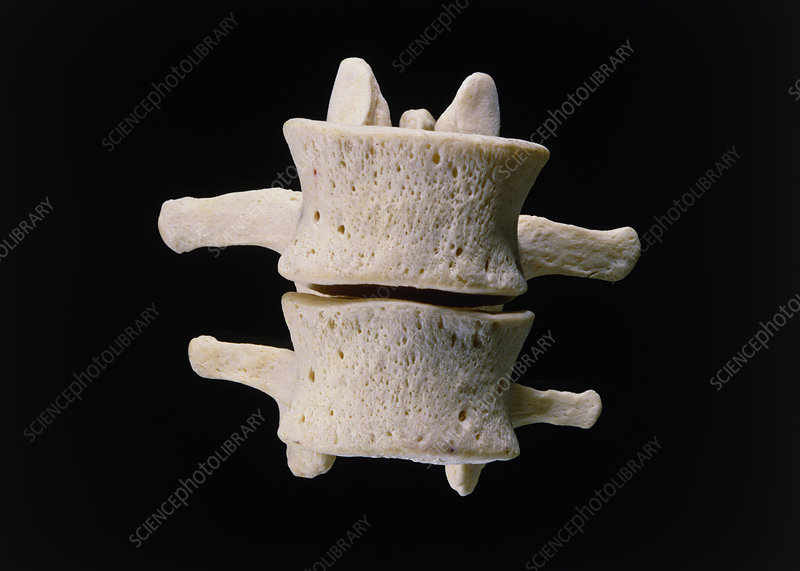 Photograph of the human L3 and L4 vertebrae