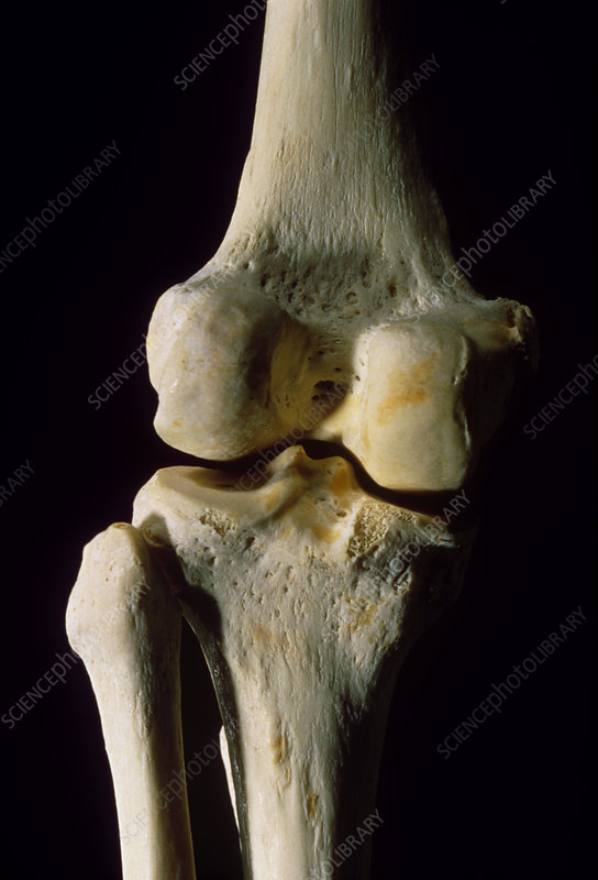 Rear view of the bones of a human left knee joint
