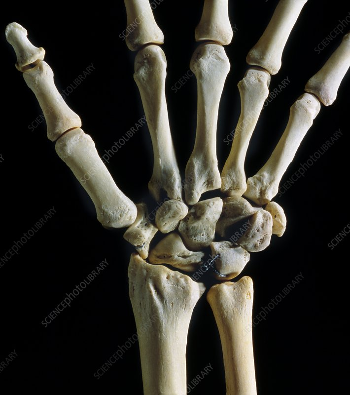 Bones of the wrist joint