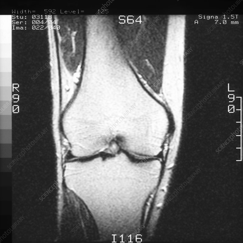 MRI scan of coronal section through knee joint