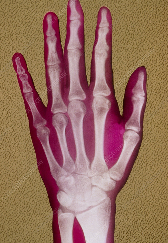 False-colour X-ray of a normal hand