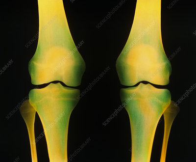 Coloured X-ray of healthy knee joints, both legs