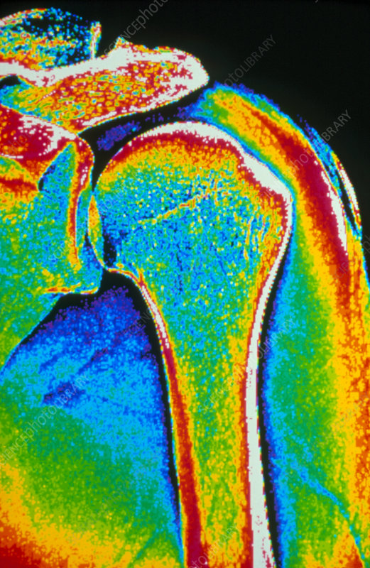 Coloured X-ray of human shoulder joint