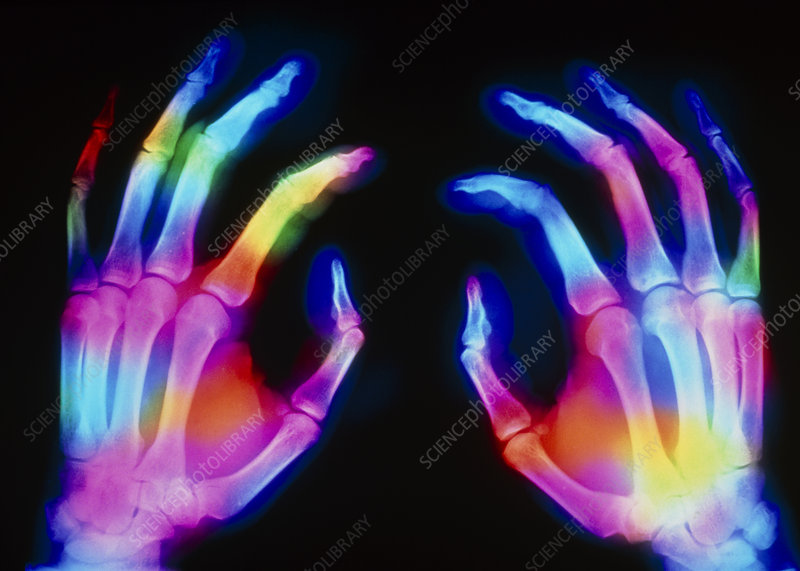 Coloured X-ray of normal human hands